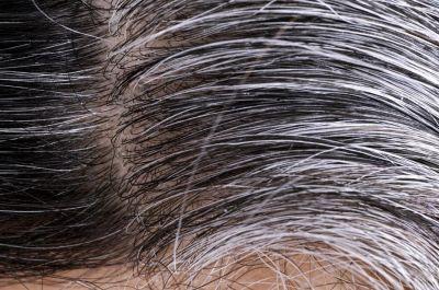 इन उपायों को आजमाने से गायब हो जाएगी बालों की सफेदी