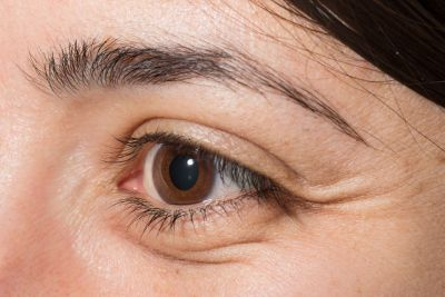 आंखों में जलन होने पर इन उपायों से पा सकते है आराम