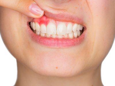 यह है दांतों से खून निकलने के कारण