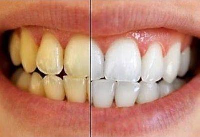 नमक और सरसों का तेल बनाएगा आपके दांतों को सफ़ेद