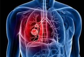 लंग कैंसर होने के होते है ये लक्षण, जानकारी ही बचाव का तरीका, जाने