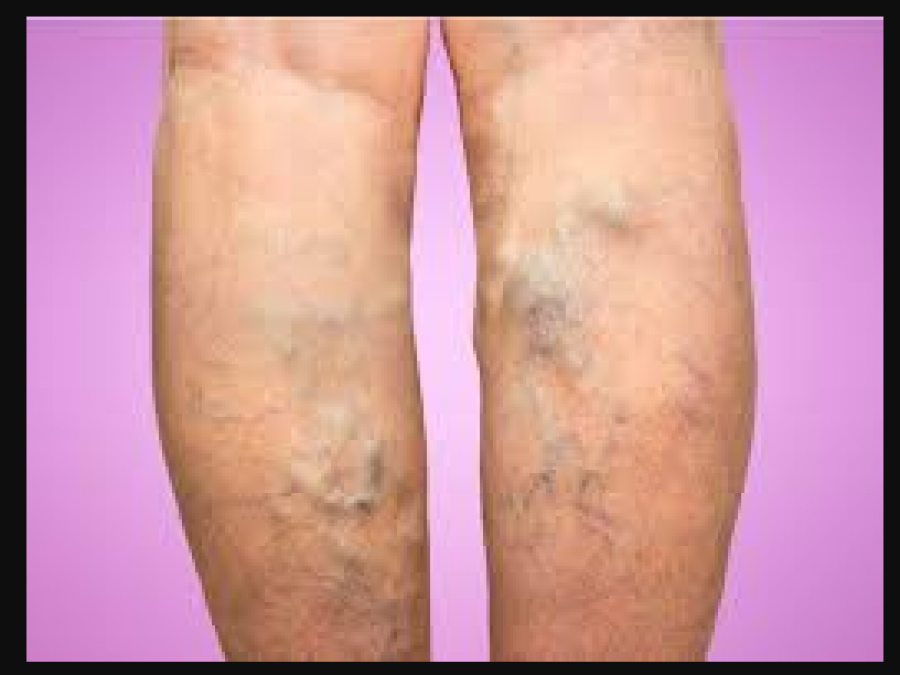 Varicose veins is a dangerous disease, this is the
