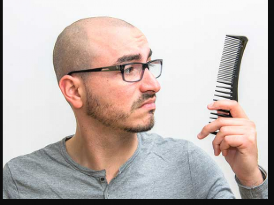 These are the reason for baldness in