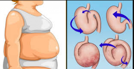 If you want to get rid of stomach gas then make this necessary change