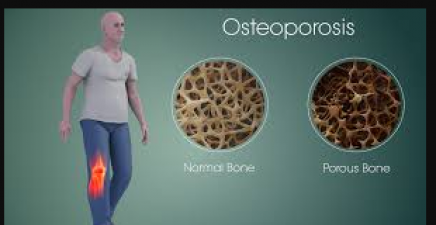 Osteoporosis Day: These things are responsible for weak bones