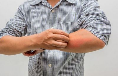 Avoid skin infections like this during the rainy season