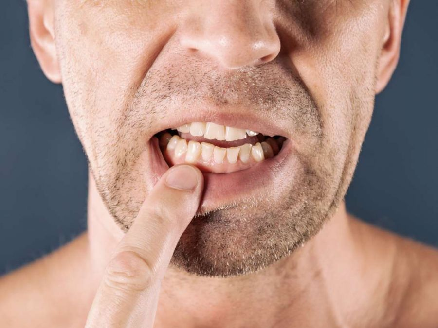 Poor oral health may lead to many diseases, know symptoms