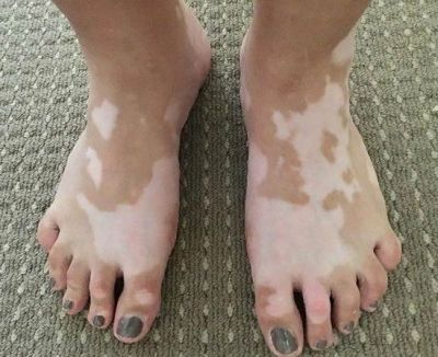 You should also know these things related to white stains