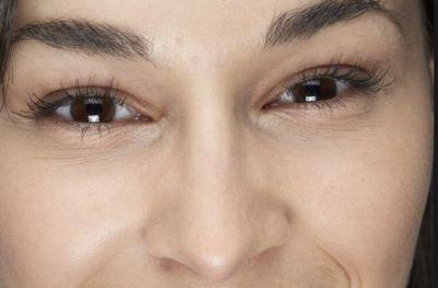 लेमन से दूर करें अपने चेहरे की झुर्रियां, नहीं होगा कोई साइड इफ़ेक्ट