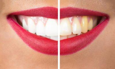 टूथपेस्ट से नहीं होगा दांतों के पीलेपन दुर, अपनाएं ये तरीका