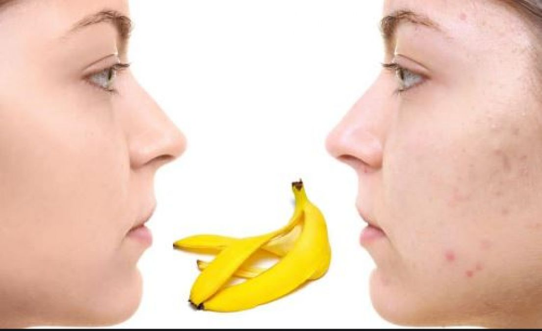 Banana peels enhance your beauty, know its amazing benefits