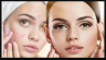 Follow these household tips to make the pimples easily disappear from face