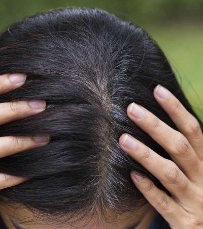 ये 5 नुस्खे करेंगे आपके सफ़ेद बालों का इलाज