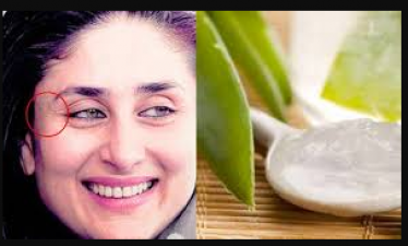 Try this home made face mist to get rid of wrinkle problems