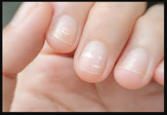 If you are troubled by white stains on your nails, treat it this way