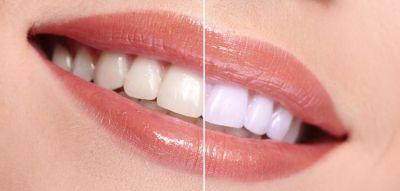 दांतों को साफ और सुंदर बनाने के लिए संतरे के छिलके का उपयोग