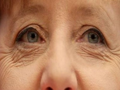 Health care: Adopt these tips to avoid cataract