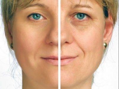 चेहरे पर दिखने वाली स्माइल लाइन को इन तरीकों से कर सकते हैं दूर