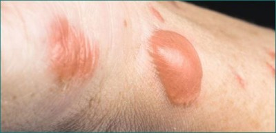 Know how to get rid of these burn marks