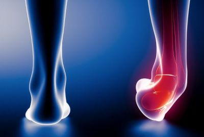 Do Treat  the heel sprain by adopting these home remedies