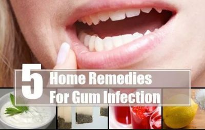 Relieve the discomfort of bleeding gums from these tips