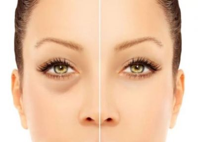 Blepharitis: These Oils Reduce Eye Inflammation