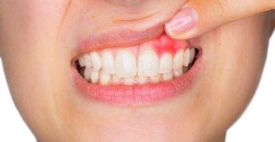 दांतों की सड़न और दर्द को दूर करेंगे घरेलु तरीके