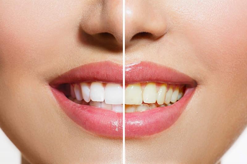 आप भी इस तरह बना सकते है अपने दाँतों को और भी चमकदार