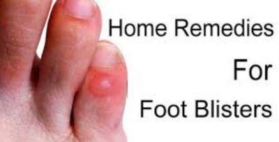 पैरों में पड़े छालों को करें घरेलु तरीकों से दूर