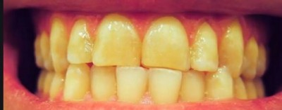 Try these home remedies to get white teeths