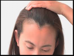Follow these domestic tips to prevent hair loss