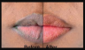 Get rid of black lips in just two days with this amazing remedies