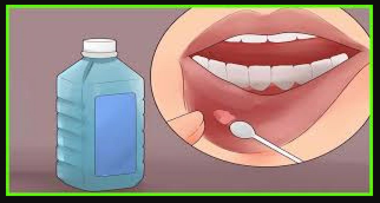 Cách chữa trị lưỡi nổi mụn nước hiệu quả