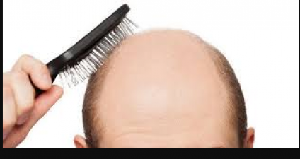 This home remedy helps to grow hair on the bald head