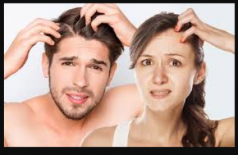 Follow these tips to get rid of hair problems during winters