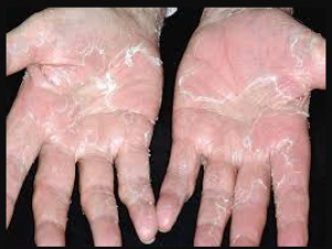 If you are troubled by the problem of skin peeling, follow this domestic recipe