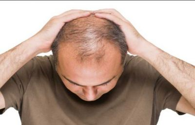 These tips will give relief from baldness