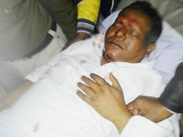 छत्तीसगढ़ : सड़क दुर्घटना में गृहमंत्री हुए घायल