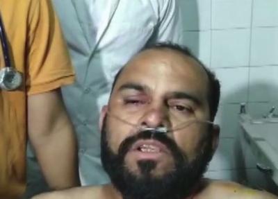 The man reveals why he slapped Hardik Patel, says, ''Who is he? Gujarat's Hitler?'