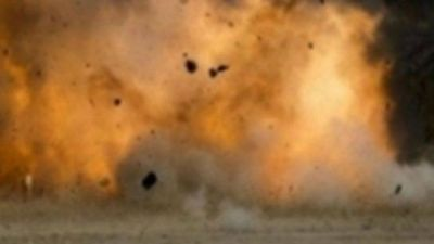 A bomb blast in Yamen, UAE photographer died and 20 injured