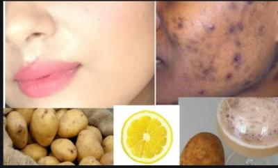 Potato face pack helps to remove acne scars and pimple spot reduction by use in this way…