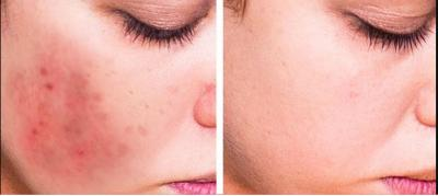 Use these kitchen products and reduce acne scars and get a clearer skin