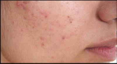 If you are suffering from pimples, try these great home remedies…