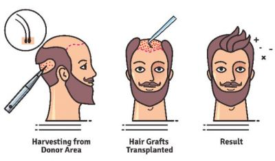 Know everything about hair transplant
