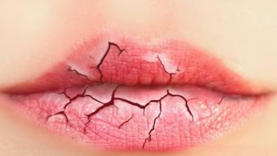 4 Natural homemade scrubs for your chapped lips
