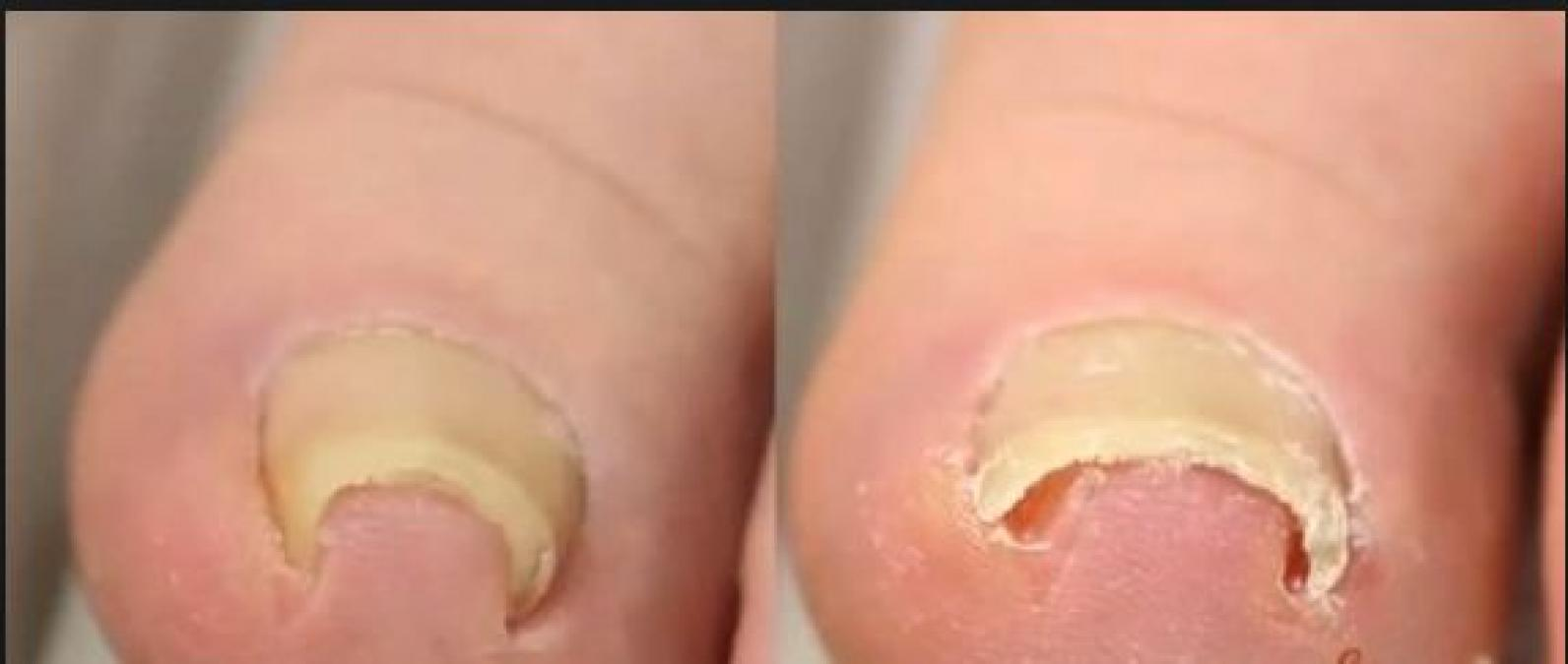 Give proper attention to your feet with these dos and don't for your ingrown toenail issue