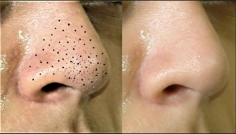 Easy home remedies to get rid of blackheads from your face and nose