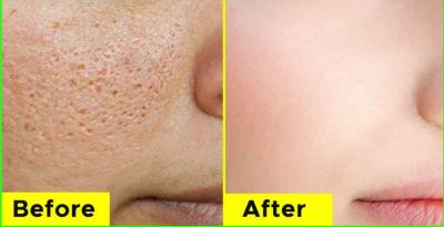 Best Home Remedies to get rid of large pores and blemishes