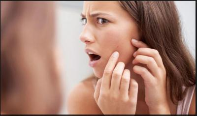 Dermatologist recommending Acne and pimples home care  remedies