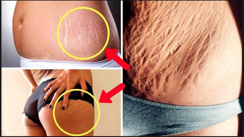 How To Cure Fat Stretch Markss